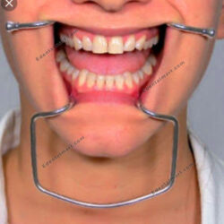 Cheek Retractor, Dental Cheek Retractor, Cheek Retractor in Pakistan